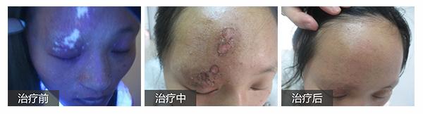 【公益】8.26—27日北京三甲专家邹凌云亲诊北大