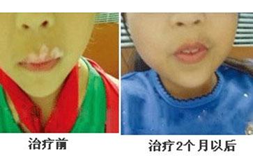 儿童白癜风的相关症状表现