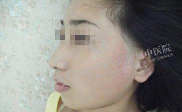 女性白癜风治疗有没有注意的事项