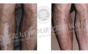 下肢患上了白斑应该怎样治疗