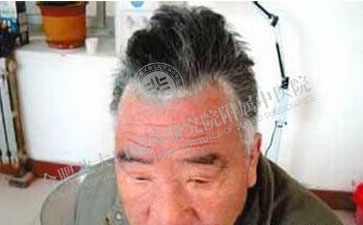 哪些原因导致老年人患白癜风呢