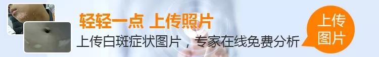 【公益】9.16—17京皖·老牌白癜风名医联合会诊