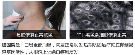 """白癜风遇上皮肤CT,竟能擦出这么大""""火花"""""""