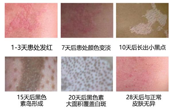 亳州白癜风皮肤恢复的三种迹象