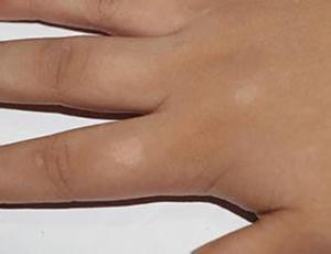 白斑患者存在灰指甲该怎么办?