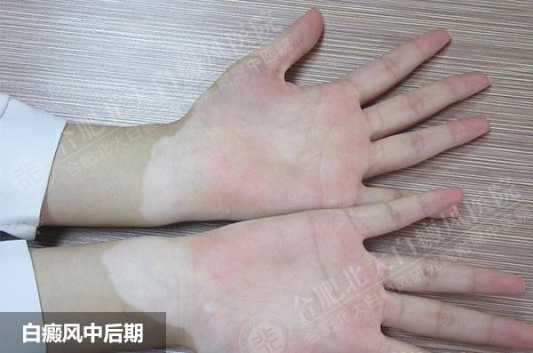 手部白癜风可能会给患者带来什么危害