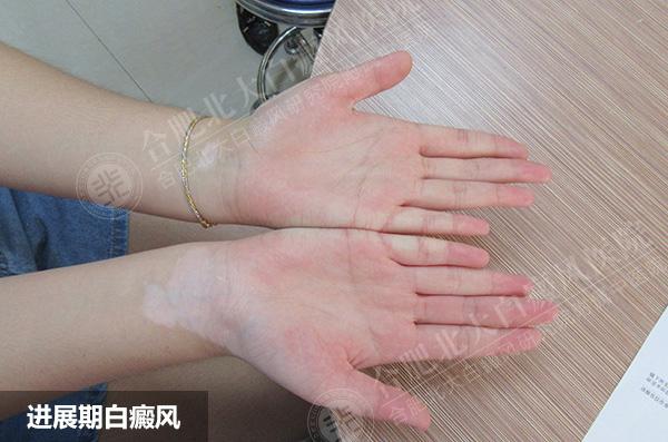 手部患白癜风的主要原因有哪些
