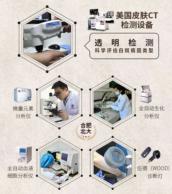 合肥中医医治肢端型白癜风医院哪家好?