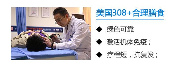 安庆分析白癜风医治方法的有哪些