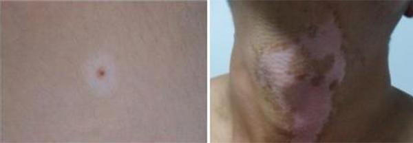 颈部出现白斑可能是哪些原因呢?