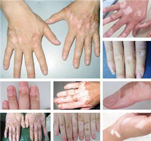 合肥手部白癜风的发病特点有哪些?