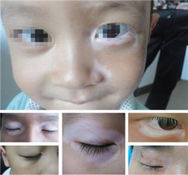宁波治白癜风专科医院 儿童泛发白癜风有什么表现