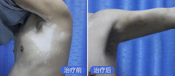 胸部白癜风治疗要注意些什么