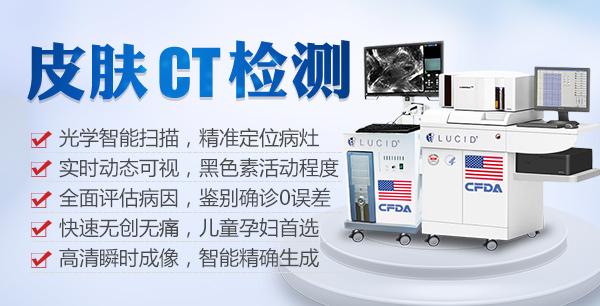 淮北三维皮肤CT,透明诊断白癜风
