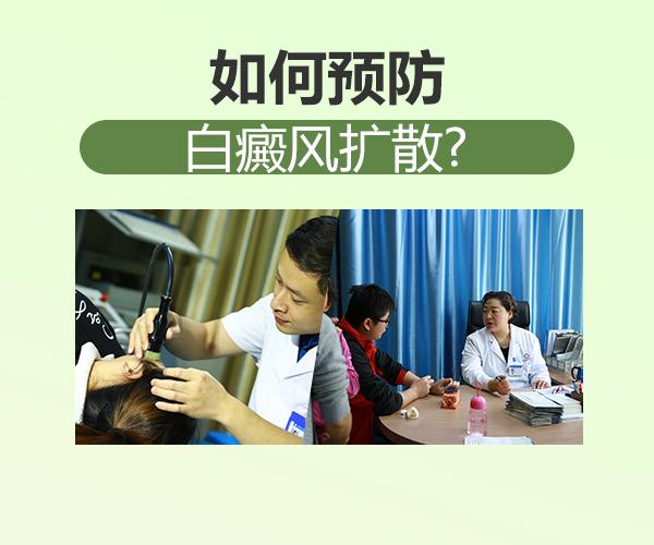 上海医院答进展期白癜风要注意哪些?