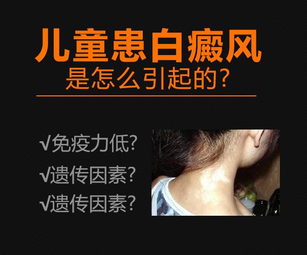 滁州治疗白癜风医院:小食品对儿童白癜风有什么影响?