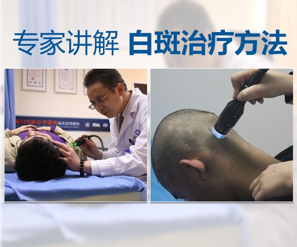 亳州白癜风早治疗VS晚治疗,有何差别?