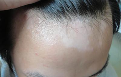 安庆脸上的皮肤白斑能不能治好呢