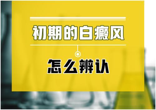 台州看白癜风哪家医院好 如何自我诊断白