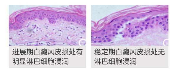 合肥北大公益皮肤CT体验活动—准确检测白斑