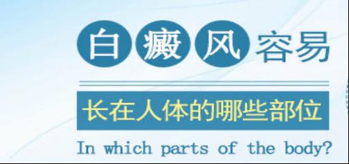 白癜风的初期症狀有哪些