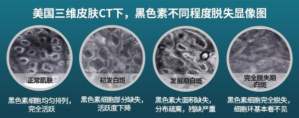 淮南皮肤CT检测基底色素消失就是白癜风