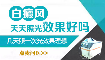 蚌埠白癜风照308激光对身体有影响吗?