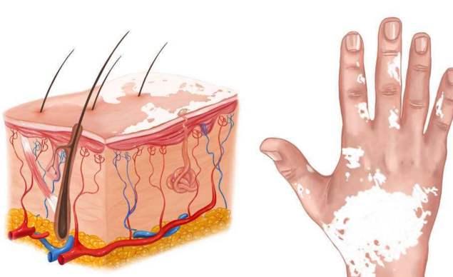 马鞍山表皮移植术—准确治疗白癜风