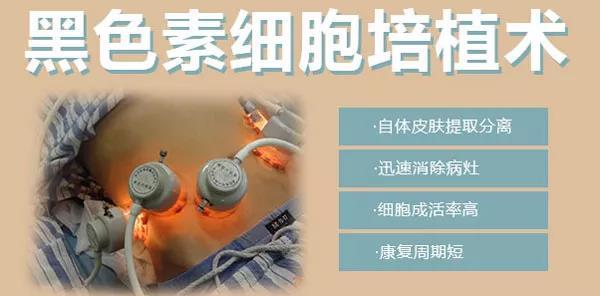 淮南黑色素细胞培植术—治疗稳定期的白