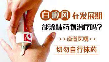 阜阳祛白酊一瓶多少钱?哪个药店