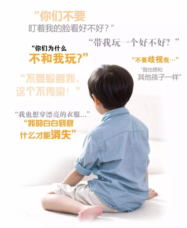 桐城小孩白癜风的早期症状有哪些?