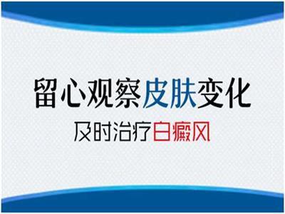 上海医院答如何看待白癜风是否稳定?