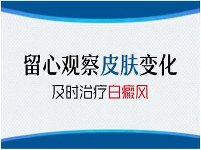 上海医院答白斑早期面积小能不能不治疗?