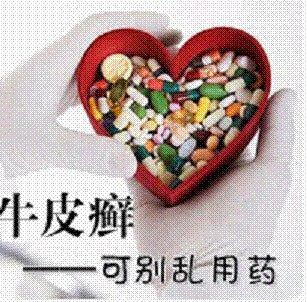 牛皮癣患者在用药时应该注意什么